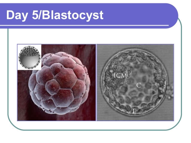 BLASTOCYST CULTURE from Mothercareivf - Top Infertility Centre & Andrology Institute in Surat