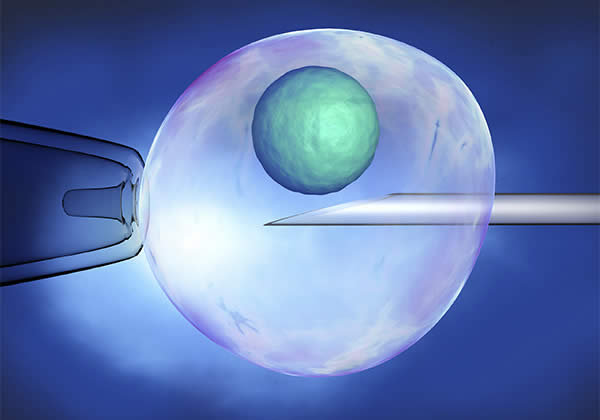 LASER ASSISTED HATCHING from Mothercareivf - Top Infertility Centre & Andrology Institute in Surat